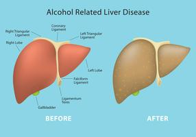 Alcohol Related Liver Disease Vector Info