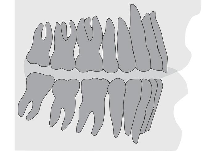 Teeth and Gums Xray