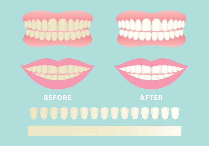Clean And Dirty Teeth Vectors