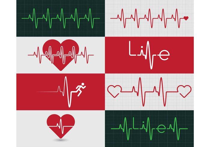 Graphique du moniteur cardiaque