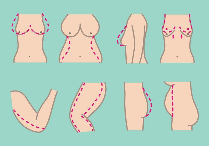 Iconos de Cirugía Plástica Gratuita