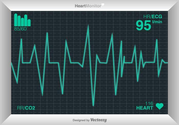 Vektor Kardiogramm des Herzens