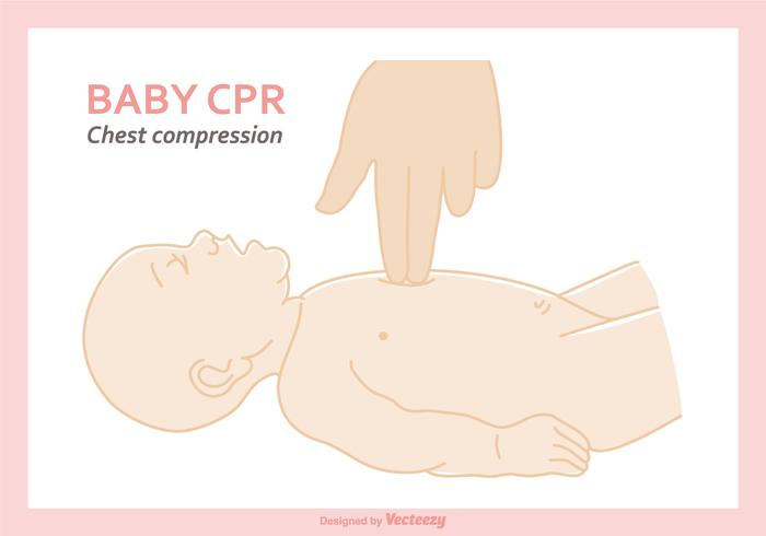 Free Baby CPR Vector Illustration