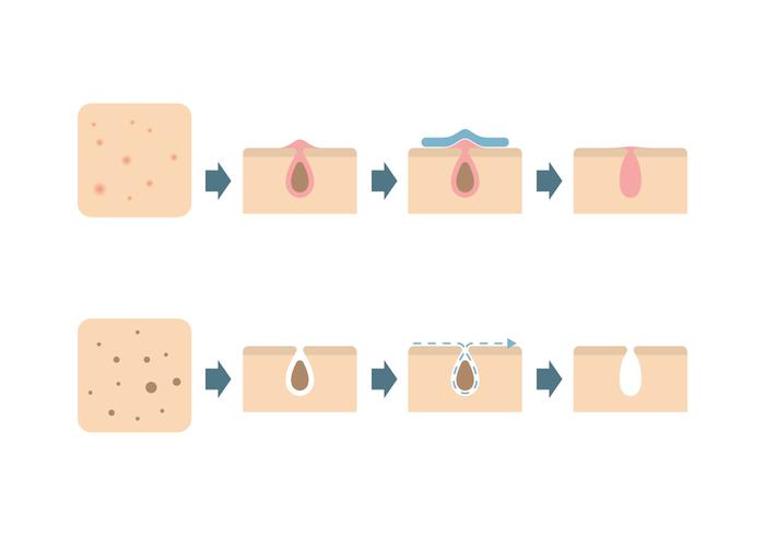 Skin Problems Icons