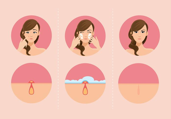 Girls And Pimples Free Vector