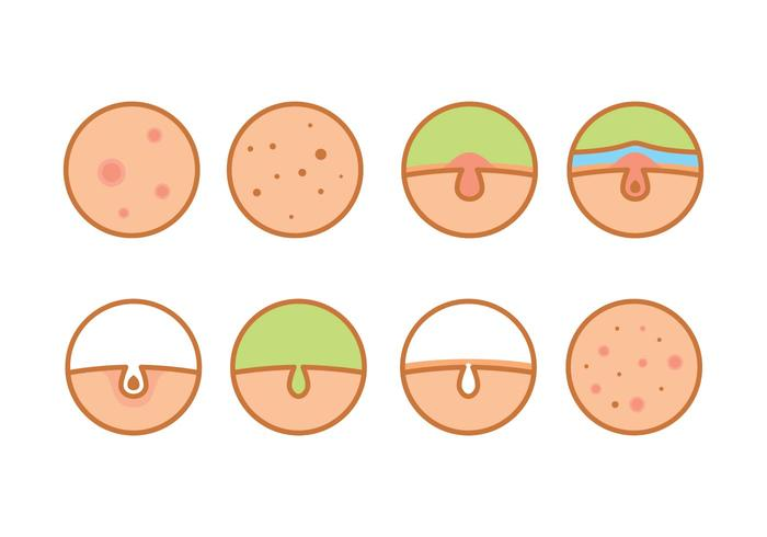 Skin Problems Vector