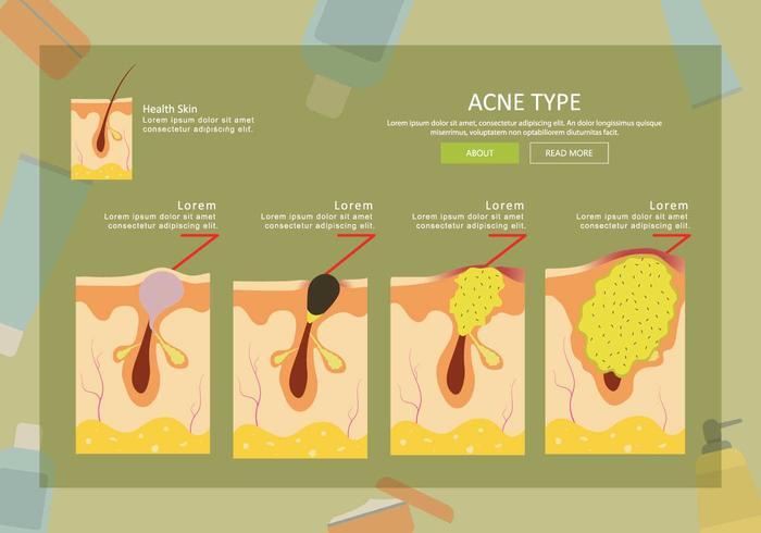 Free Acne Type Illustration