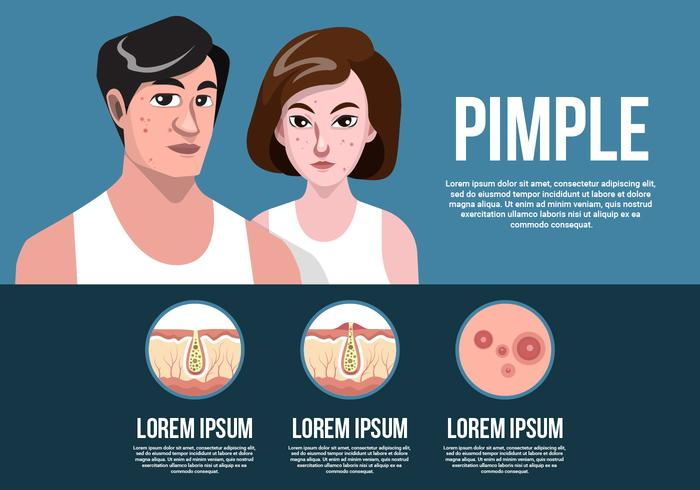 Woman And Man With Pimples On Face Vector Illustration
