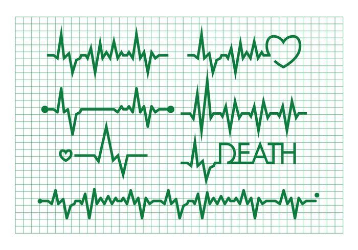 Set vettoriale di ritmo cardiaco