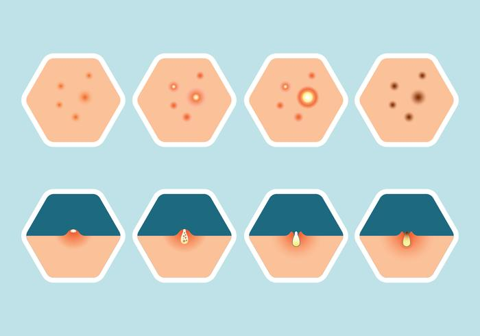 pimple icons set vector