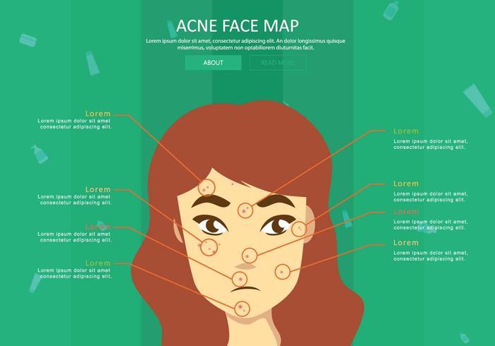 Illustration gratuite de la carte de la peau de l'acné
