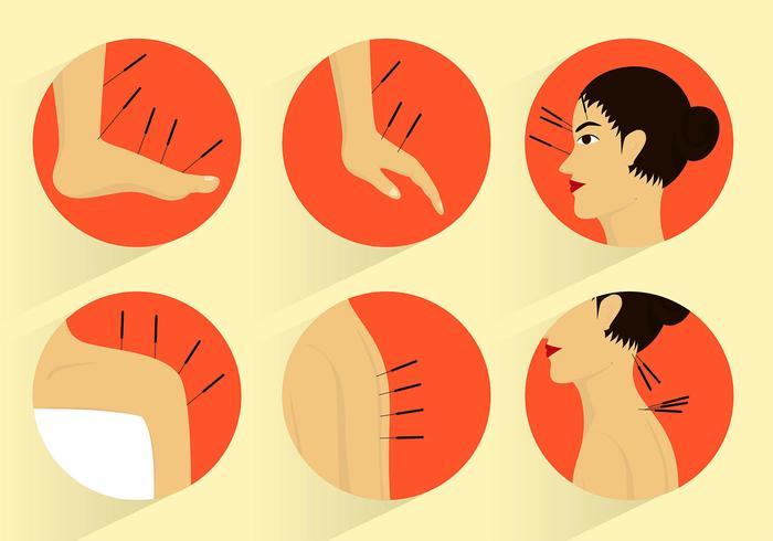 Akupunktur Set Free Vector