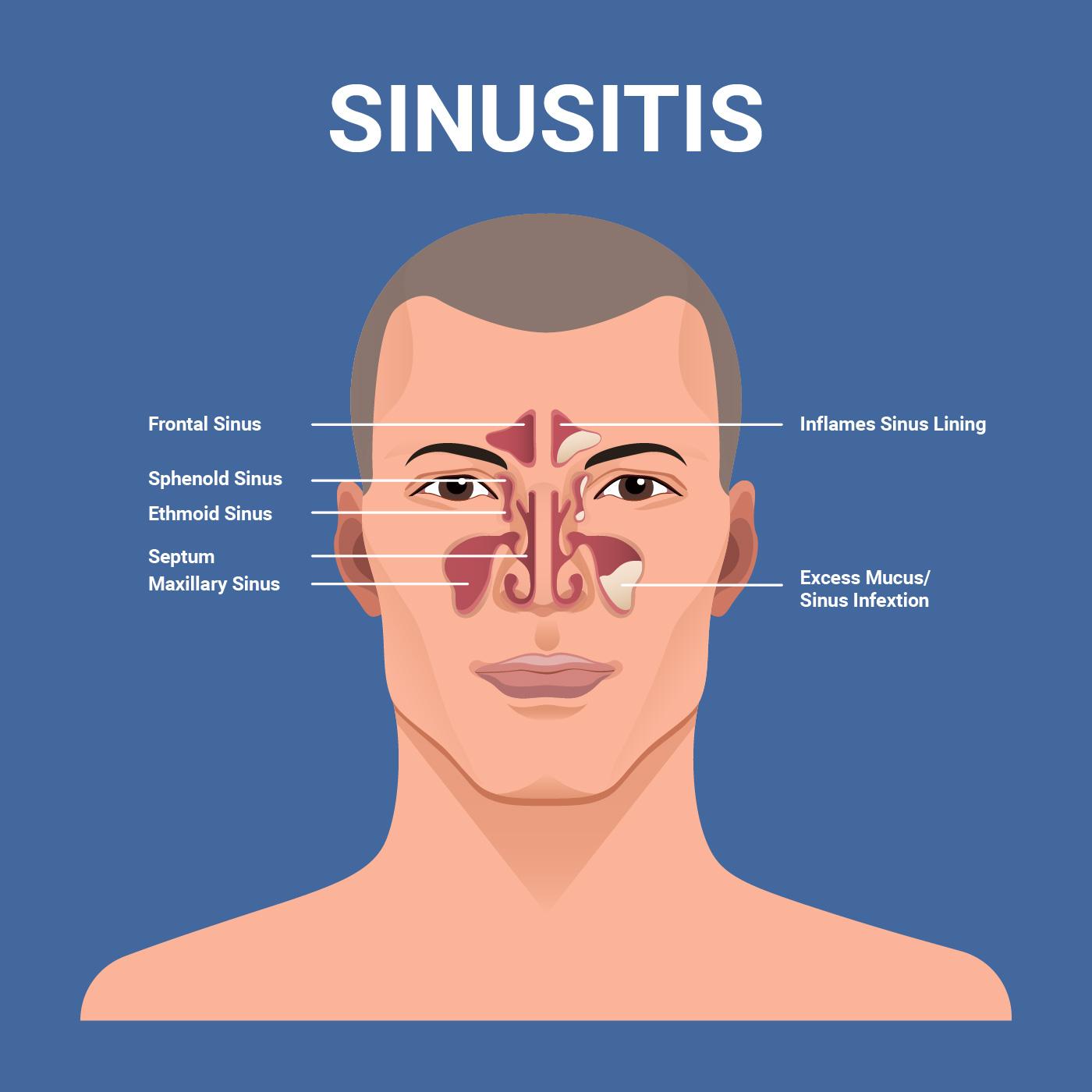 Sinusitis Vector Illustration Download Free Vector Art