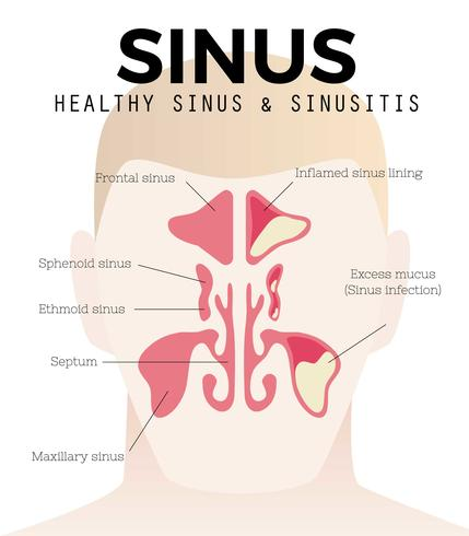Sinusitis y vector gratis de sinusitis