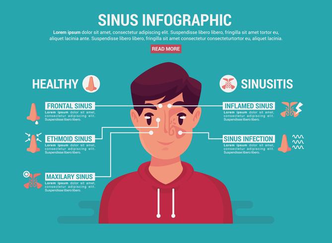 Sinus Infographic