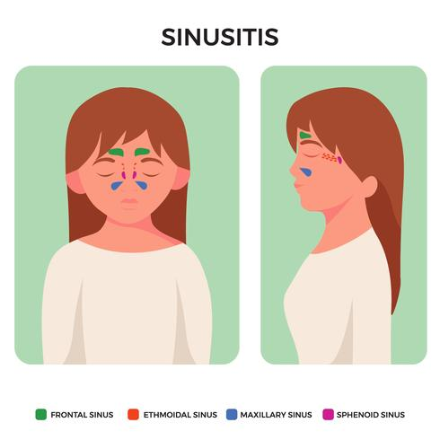 Sinusitis Disease Sinus Anatomy Illustration