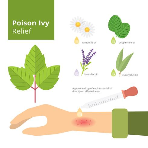 Poison Ivy Relief Infographic Free Vector