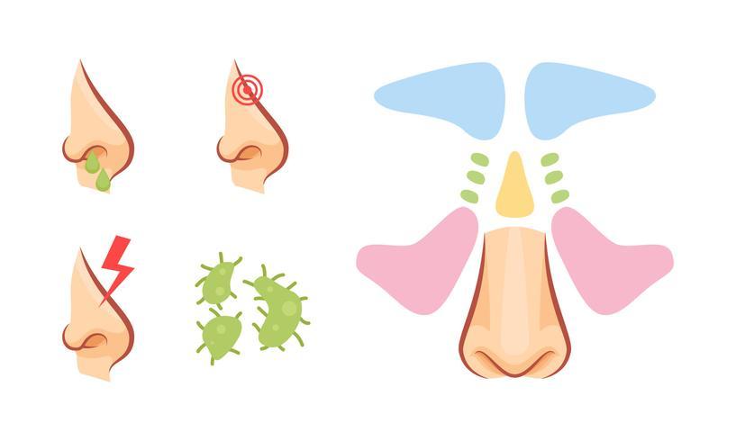Free Outstanding Sinus Vectors