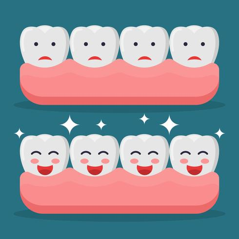 Valse tanden vectoren