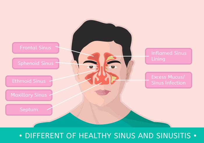 Different Of Healthy Sinus and Sinusitis