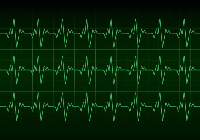 Heartbeat Monitor Vector