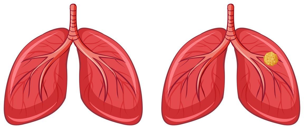 Menselijke longen en kanker