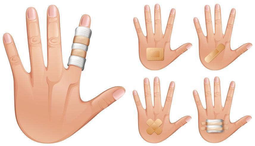 Finger und Hände mit Bandagen umwickelt