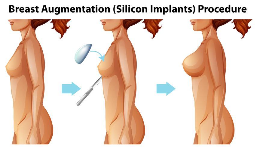 Un vector de implantes mamarios femeninos