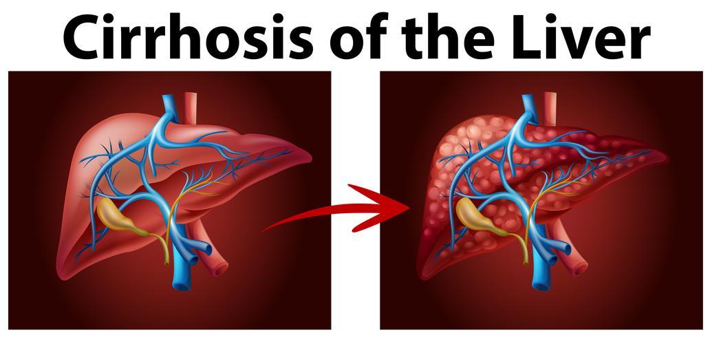 Diagram met cirrose van de lever