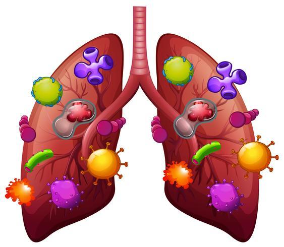Pulmones cubiertos de bacterias.