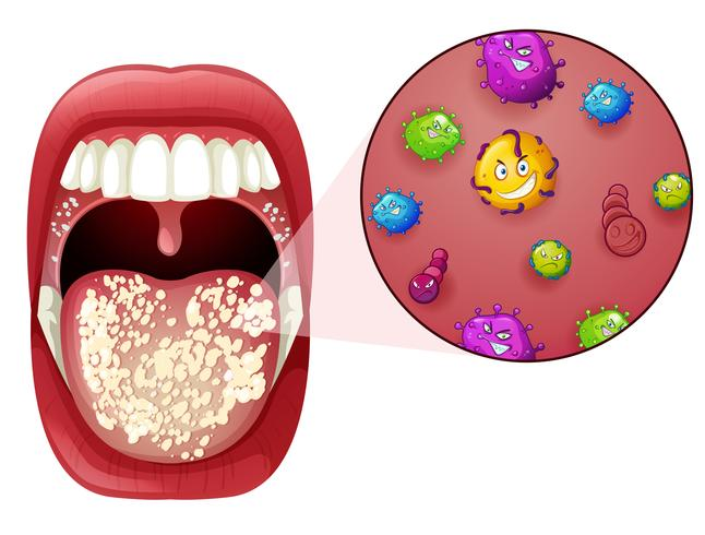 Un'infezione da virus della bocca umana