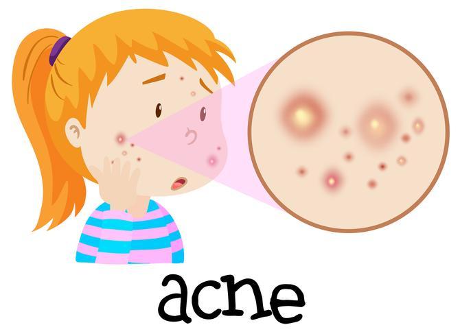 A Young Woman Having Acne vector
