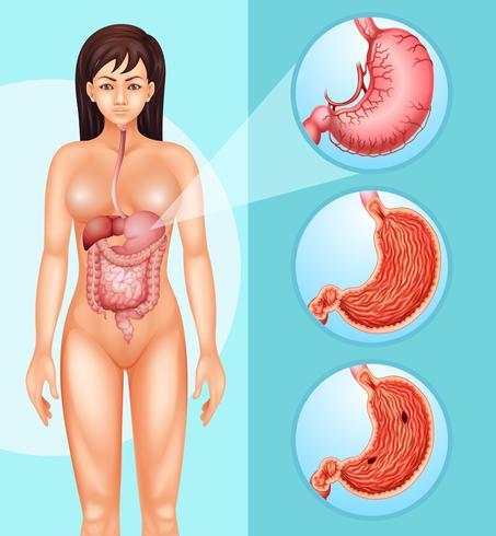 Diagram dat vrouw en kanker in maag toont