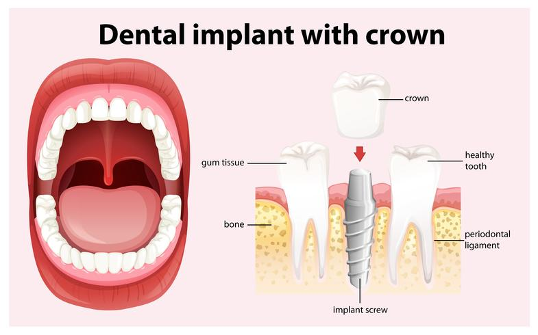 Dental Implant with Crown Vector
