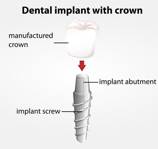 Tandimplant met kroon