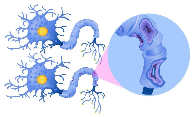Eine Reihe von menschlichen Nervenzellen vektor