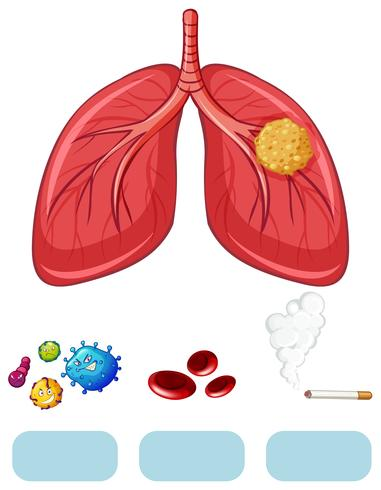 Lung cancer diagram with virus and cigarette vector