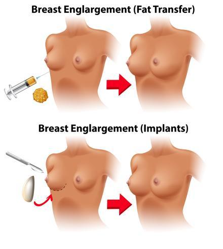 Un vector de cirugía de mama