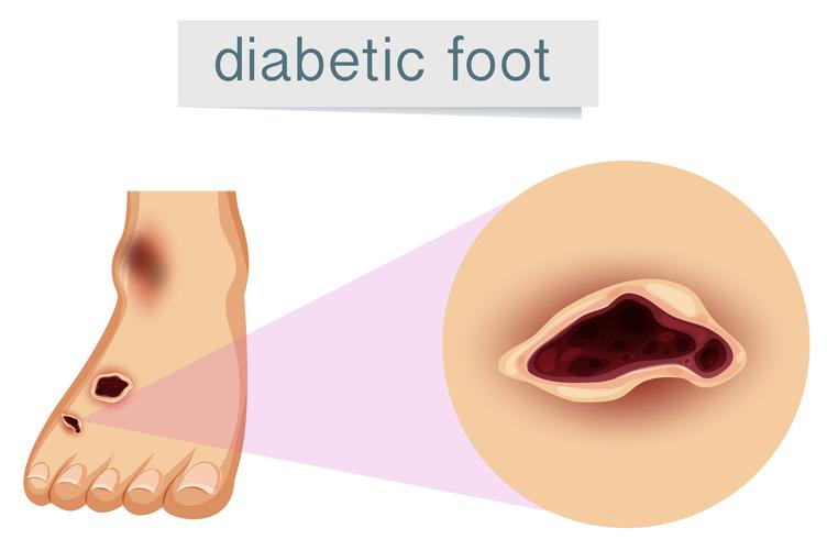 A human foot with diabetic