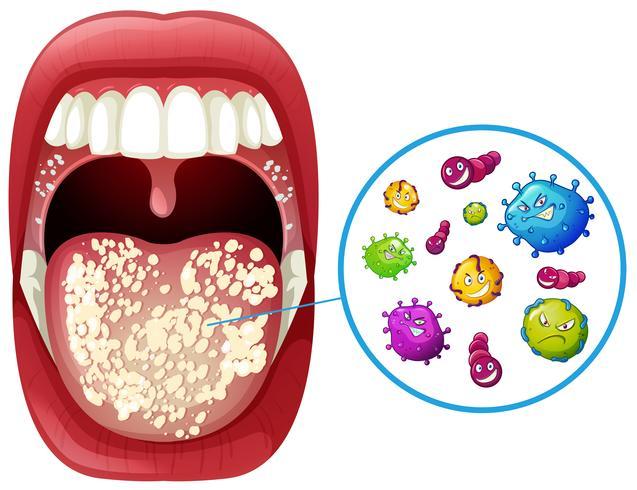 Eine menschliche Mund-Virus-Infektion vektor