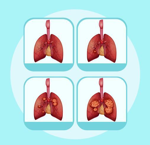 Diagramme montrant les différentes étapes du cancer du poumon