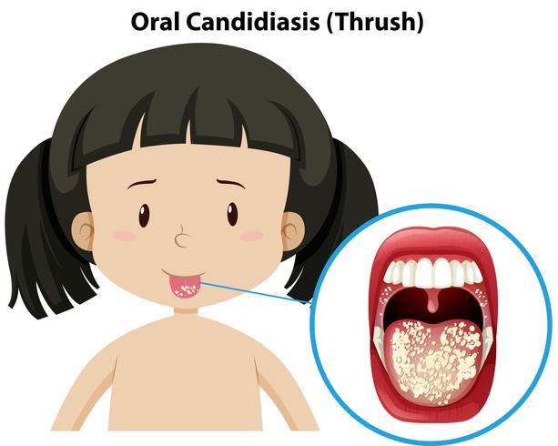 Oral Candidiasis thursh på tjejen