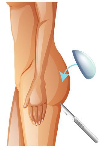 Um vetor de aumento de nádegas