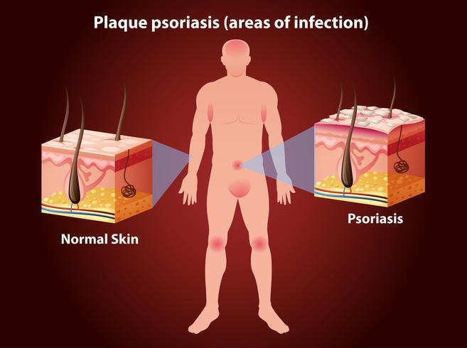 Diagram som visar plack psoriasis hos människa