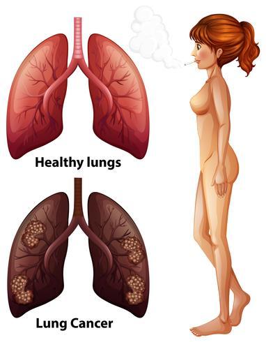 Anatomía humana del pulmón del fumador