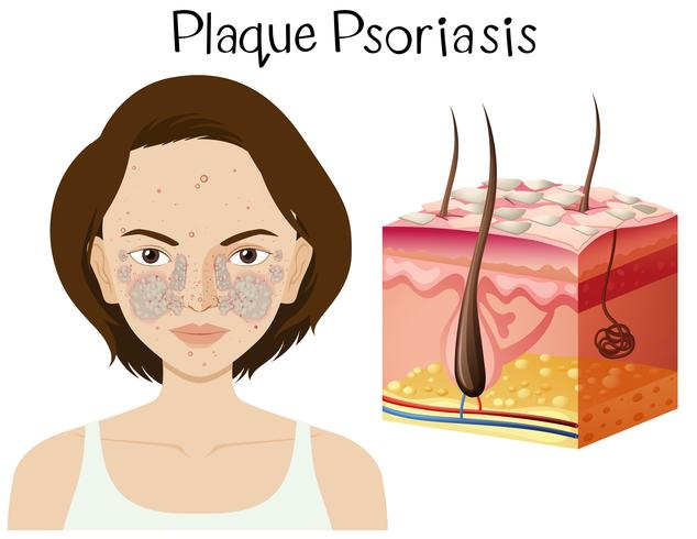 Human Anatomy of Plaque Psoriasis vector