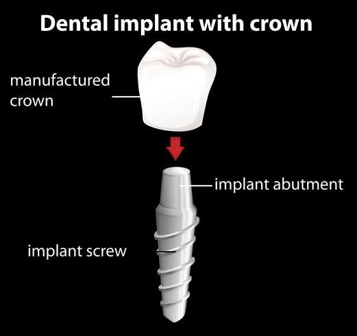 Um implante dentário com coroa