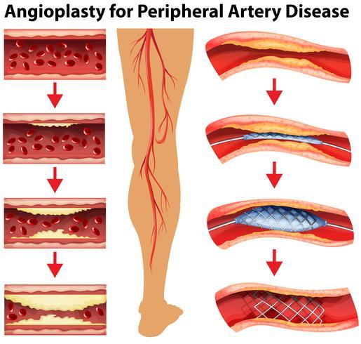 Diagrama mostrando angioplastia para doença arterial periférica