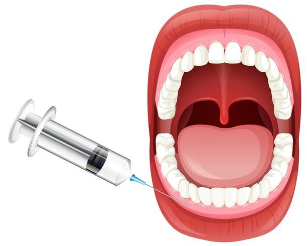 Mondanatomie met tandvleesinjectie