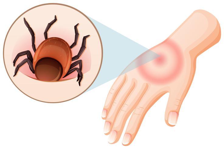 Tick Bite menschliche Hand